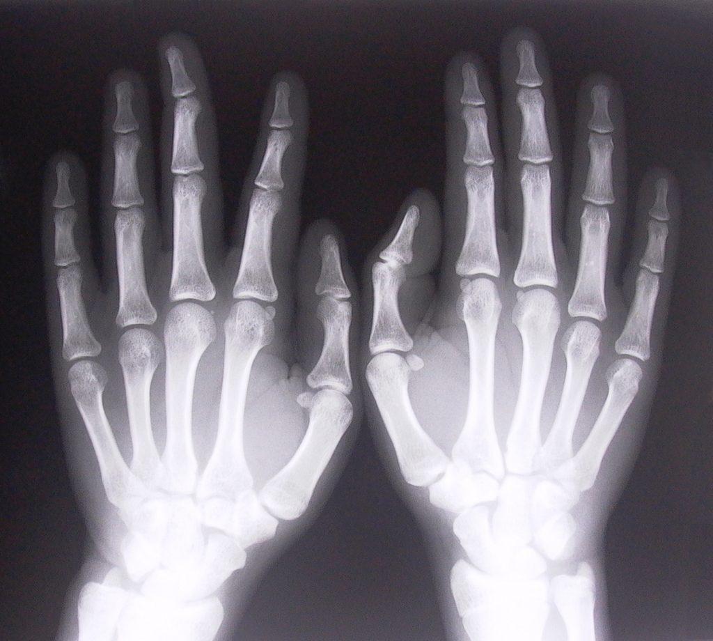 xray-of-hands-1526780-1024x920