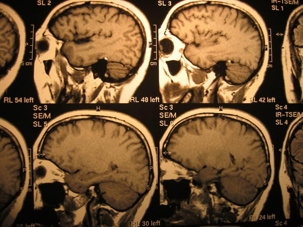 x-ray-head-1435100