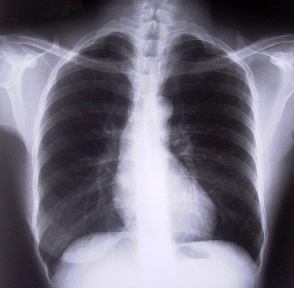 chest-xray-1526779-1-1024x1004